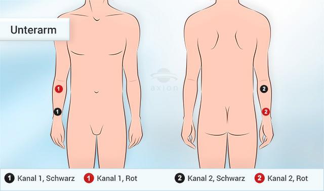 tens-elektroden-platzierung-unterarm